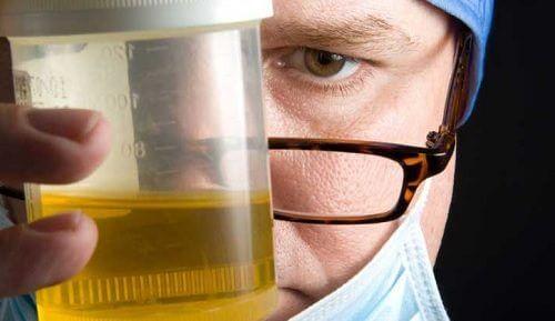 Schlechter Harngeruch: 8 mögliche Ursachen