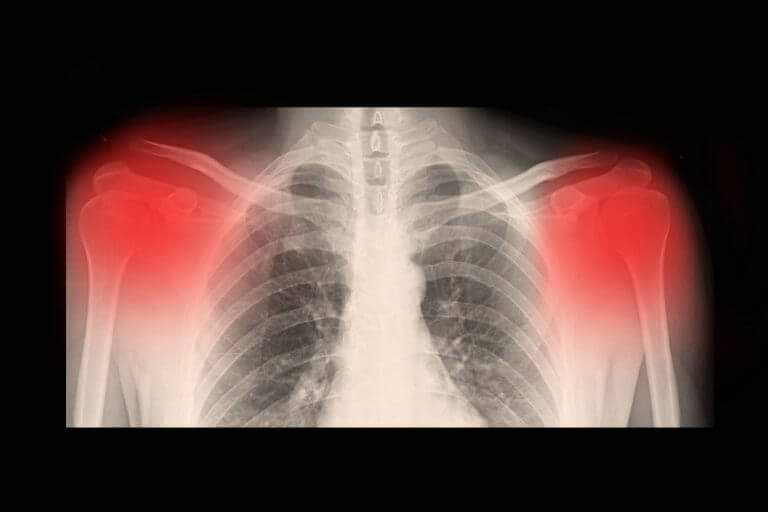 Symptome und Ursachen von Arthrose