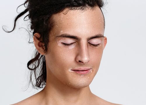 Frau möchte Vitiligo behandeln