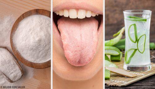 8 Hausmittel gegen weißen Zungenbelag