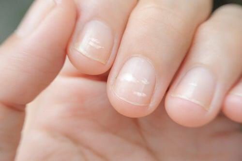 Linien auf den Nägeln