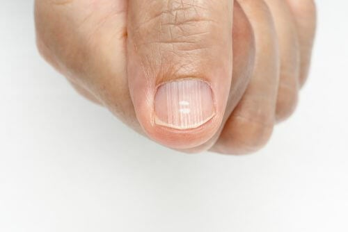Linien auf den Nägeln und wie man sie los wird
