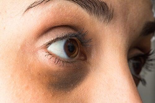 dunkle Augenringe weisen auf Hormonstörungen hin