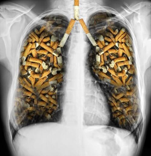 Die Raucherlunge eines der Irrtümer über den Tabakkonsum