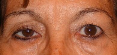 hängende Augenlider als Anzeichen für Krankheiten