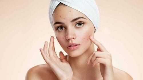 Schönheitsgeheimnisse mit Apfelessig: Behandlung von Akne