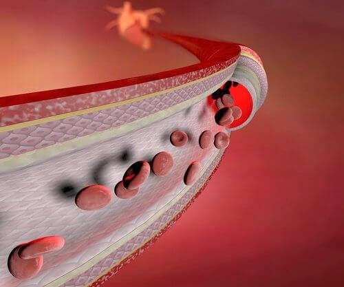 Schwache Blutgefäße