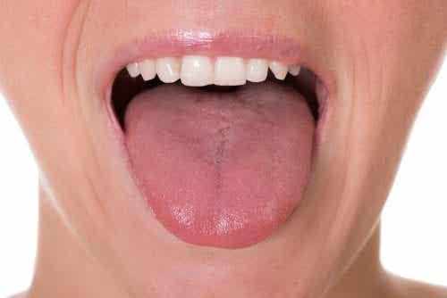 5 anfängliche Symptome von Zungenkrebs