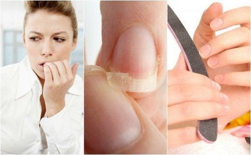 8 Gründe für splitternde, brüchige Fingernägel