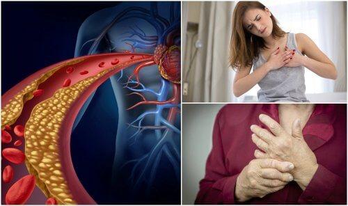 Ist dein Cholesterinspiegel zu hoch?
