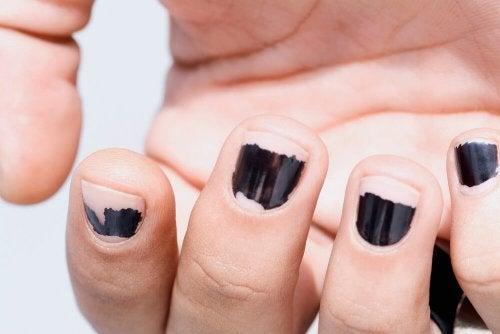 brüchige Fingernägel pflegen