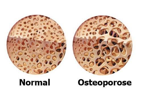 Starke Knochen in der Menopause
