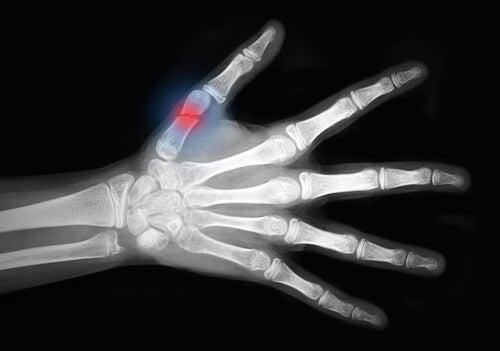 Stürze bei Osteoporose in der Menopause können gefährlich sein.