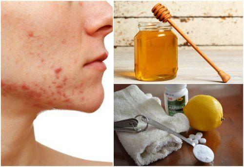 6 Hausmittel gegen zystische Akne