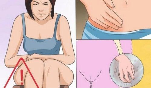 Vaginale Candidose: Ursachen, Symptome und Behandlung