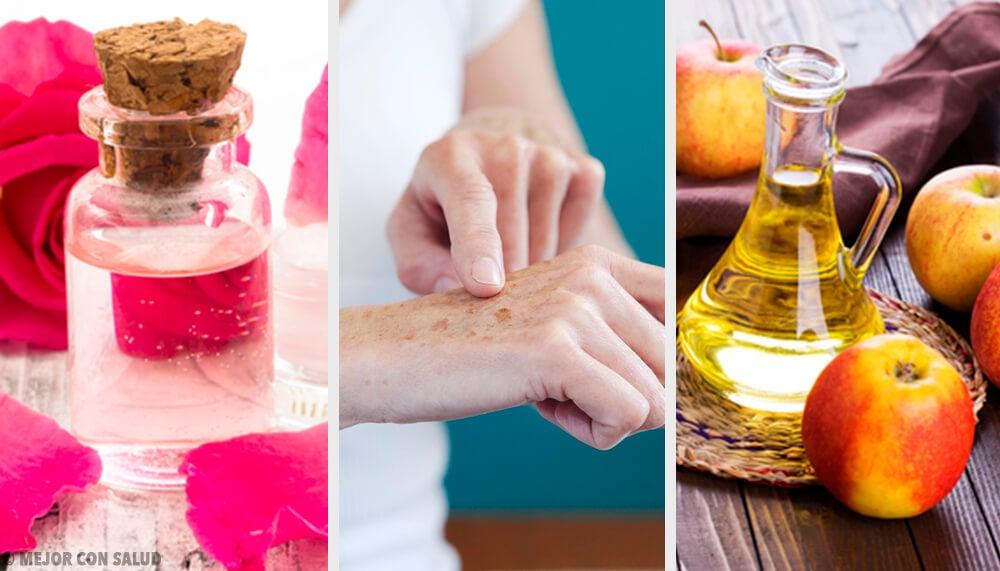 8 Naturheilmittel für ebenmäßige Hände