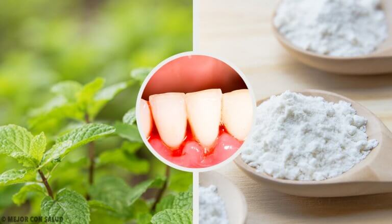 5 wirksame Heilmittel gegen Zahnfleischentzündungen
