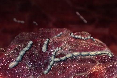 Krankheitsursachen bei Scharlach oder Scharlachfieber