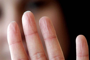 Übermäßiges Schwitzen an den Händen
