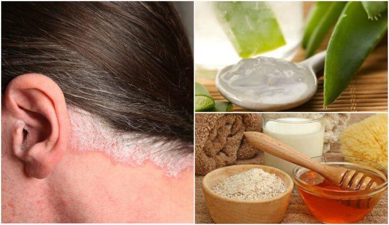 5 Hausmittel gegen Schuppenflechte auf der Kopfhaut