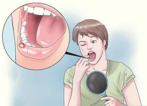 8 natürliche Heilmittel gegen Mundgeschwüre