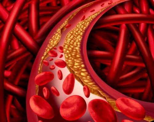 LDL-Cholesterin in den Arterien