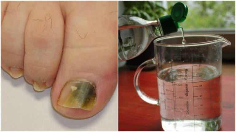 Natürliches Rezept gegen Nagelpilz
