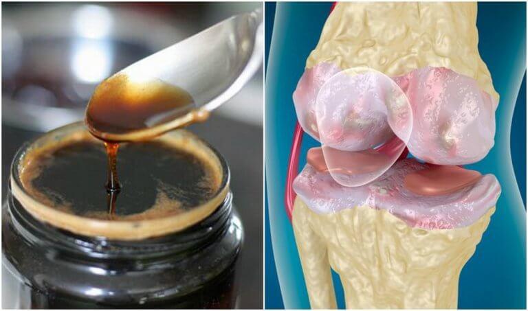 Behandlung für starke Knochen und Gelenke
