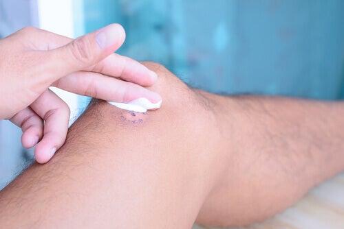 Verwendungsmöglichkeiten von vaseline: Wundheilung