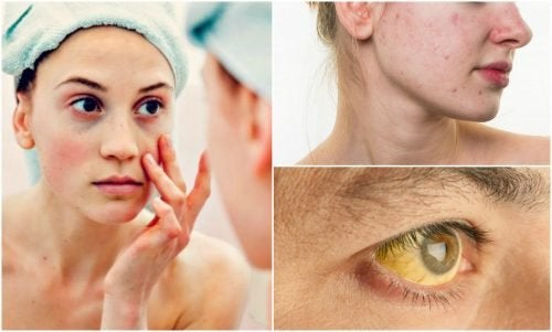 7 Anzeichen für Nährstoffmangel, die man im Gesicht sieht
