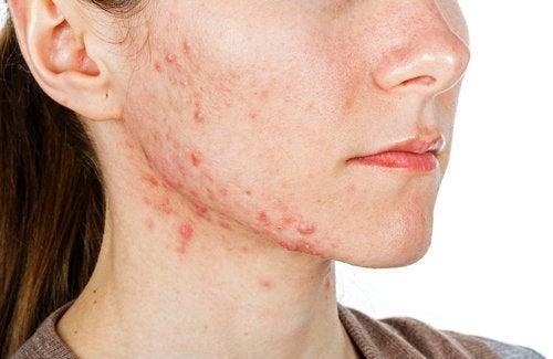 Akne ist ein Anzeichen von Nährstoffmangel
