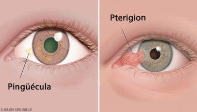 Augentumore wie die Pinguecula und das Pterygium