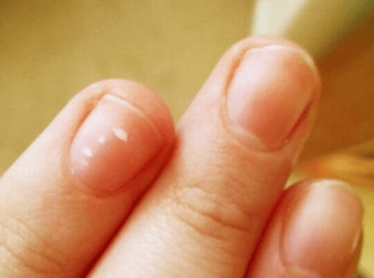 Die Lunula des kleinen Fingers kann wichtige Informationen geben.
