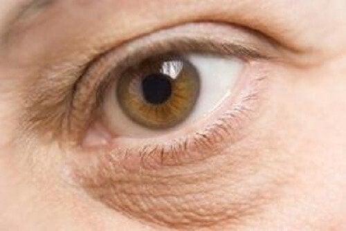 Geschwollene Augen sind ein Anzeichen für Nährstoffmangel