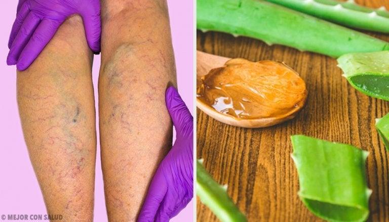 Hausmittel mit Aloe vera gegen Krampfadern