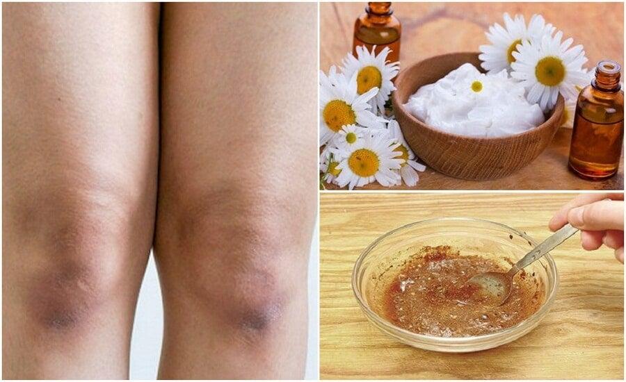 Peeling für samtweiche Haut an den Knien