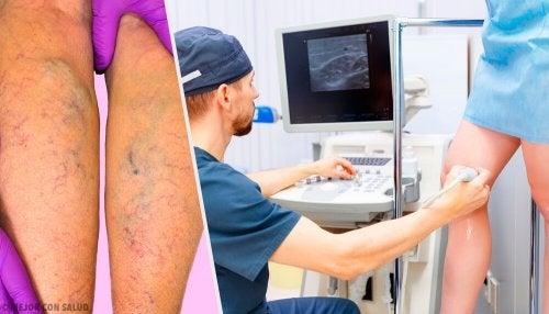 Durchblutung in den Beinen verbessern, um Krampfadern vorzubeugen