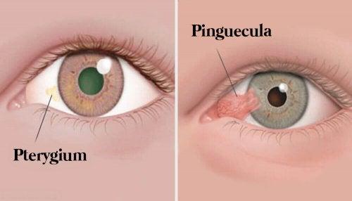 Augentumore: Pinguecula und Pterygium
