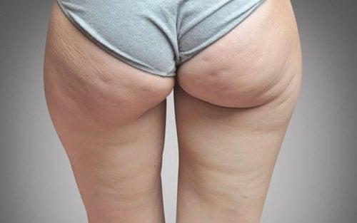eine Flüssigkeitsretention kann zu Cellulite führen