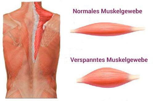 Muskelverspannungen