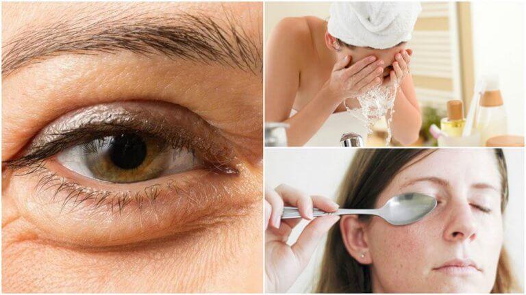 6 natürliche Methoden gegen Tränensäcke
