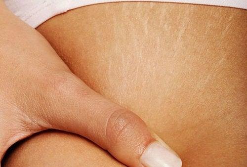 Erscheinungsbild von Dehnungsstreifen der Haut verbessern