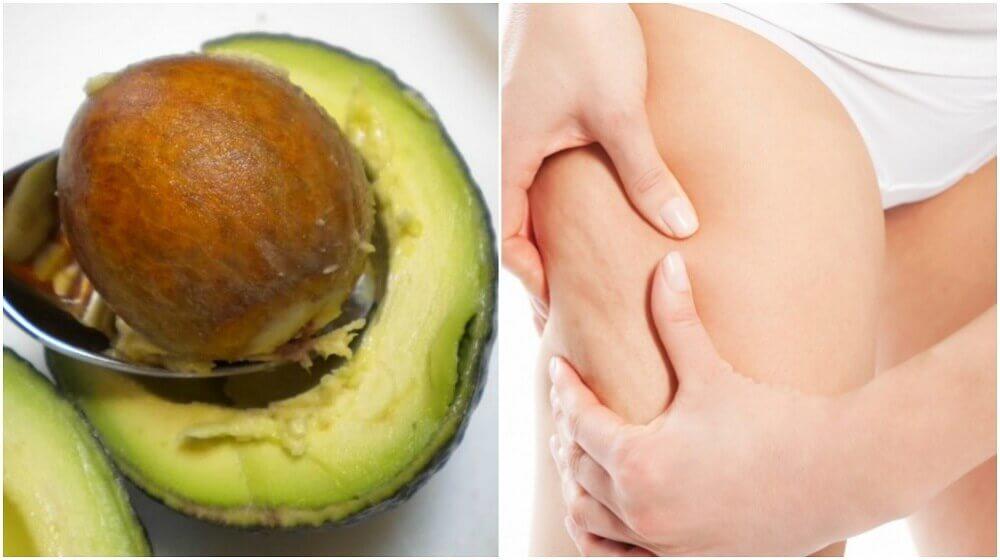 Wie du Avocadokerne gegen Cellulite einsetzen kannst