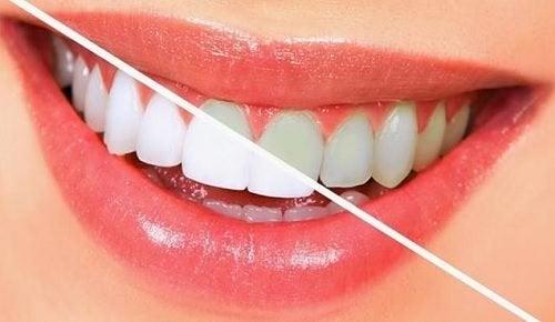 10 Lebensmittel, die deine Zähne bleichen
