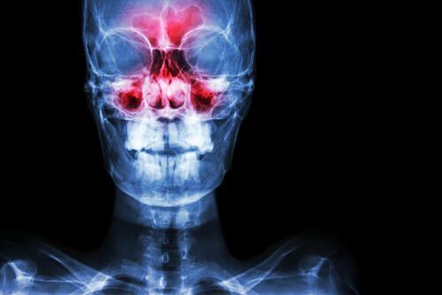 die Nasennebenhöhlenentzündung