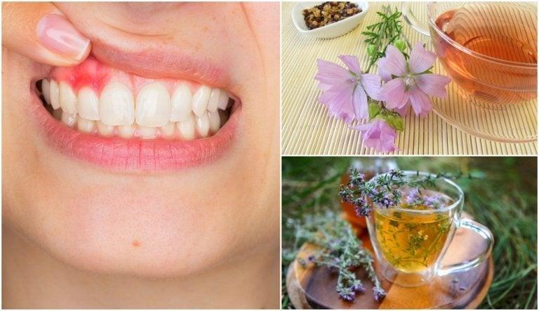 5 Naturheilmittel gegen Gingivitis