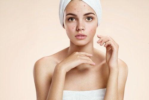 Frau braucht Tipps gegen Akne
