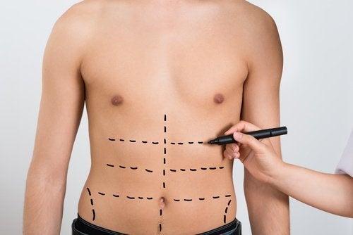 Bauchmuskeln trainieren - SItups