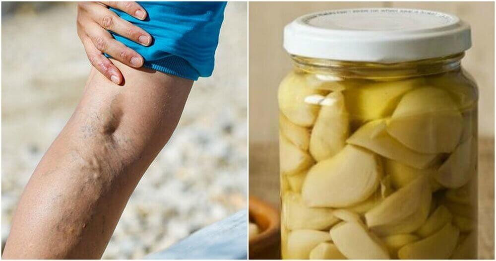 Knoblauch und Orange als Heilmittel gegen Krampfadern
