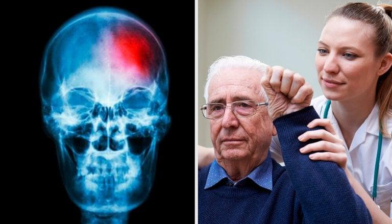 Hirnschlag: Symptome und Risiken